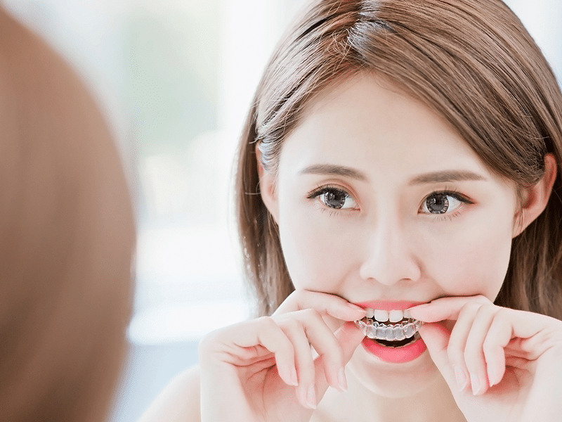 Invisalign clear aligners in hobart